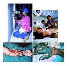 Examples of electrical injuries